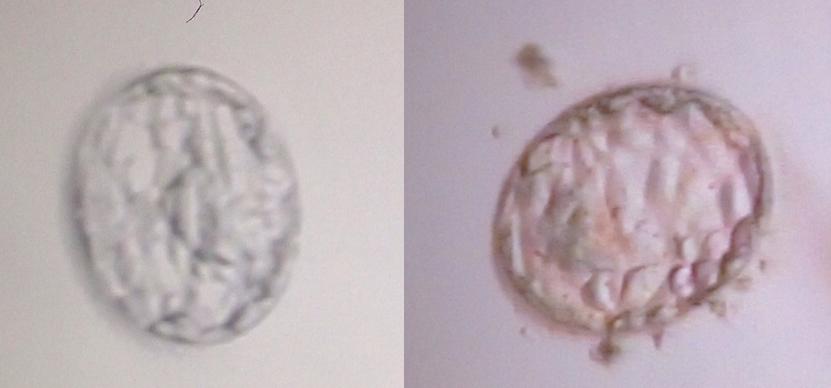Blastozysten IVF